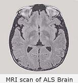 MRI scan of ALS brain